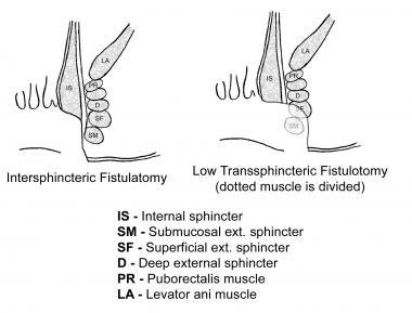 Drawing of interspheric fistulatomy and low transsphincteric.