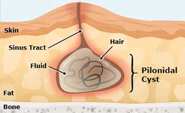 Representation of a human body having a pilonidal sinus condition. On the right of the picture is being magnified the pilonidal cyst area, showing the damaged area of the skin, fat, with the cyst touching the bone.