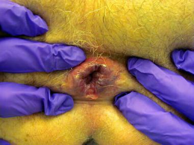 Close up picture of the anus examined by a surgeon wearing purple gloves. It is being highlighted the anal fissure condition where a wall of the anus has splitted.