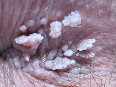 Close up of the anus area, highlighting Anal Warts condition.