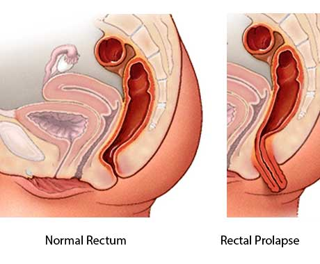 Graphic representation of a normal rectum and rectal prolapse. Full-thickness rectal prolapse is shown as protrusion of the full thickness of the rectal wall through the anus.